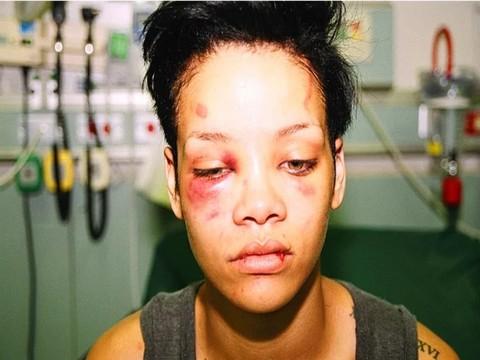 Rihanna'ya Tokat... REKLAMA, SNAPCAHT KULLANICILARINDAN SERT TEPKİ!..