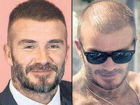 David Beckham... SAÇ MI EKTİRDİ?..