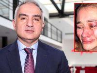 Mehmet Nuri Ersoy... UKRAYNALI MODELİN DAYAK YEMESİ OLAYINA EL KOYDU!